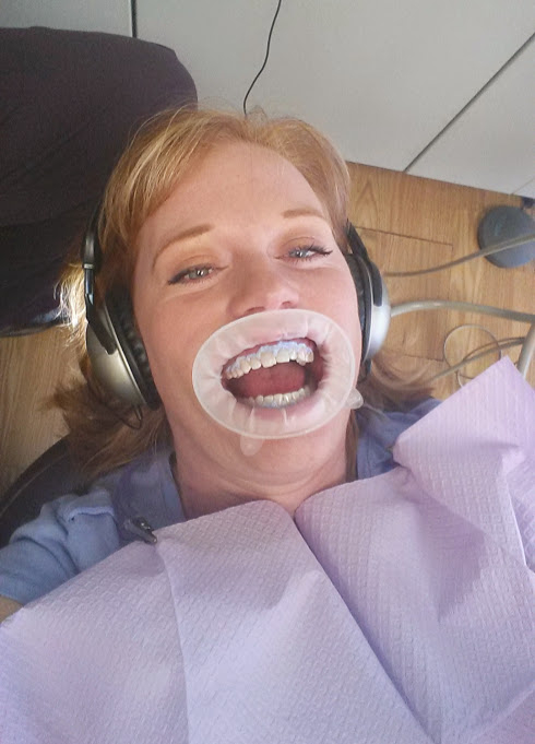 Woodland Park Dental Teeth Whitening Open Mouth